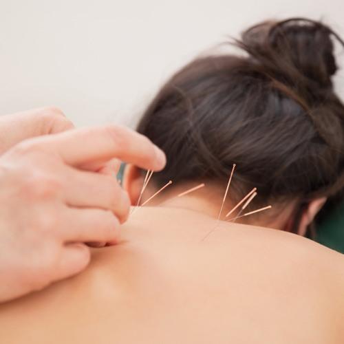 7 Manfaat Akupuntur Sebagai Teknik Pengobatan Cina