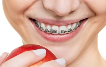 13 Manfaat Kawat Gigi Bagi Kesehatan