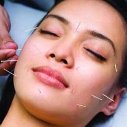 manfaat akupuntur wajah